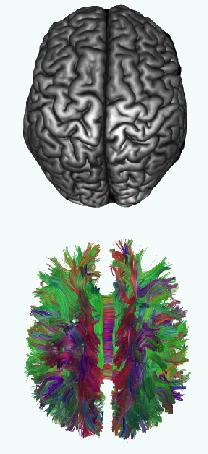 Een 3D model van een structurele MRI-scan van het brein (boven) en een 3D model van een DTI-scan (onder).
