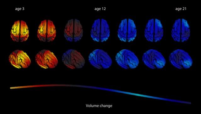 De ontwikkeling van de hersenschors (het buitenste deel van de hersenen) van 3 tot 21 jaar oud. De bovenste rij laat de hersenen zien alsof je er van bovenop naar kijkt, met de voorkant van het brein naar boven. De onderste rij is een zij-aanzicht, met de voorkant van het brein naar rechtsonder. Gele en rode tinten betekenen een toename in volume, blauwe tinten een afname in volume. Alle gebieden zijn dus tot in de volwassenheid aan het veranderen, en niet elk hersengebied ontwikkelt even snel. Data bron: Jernigan et al., 2015.